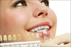 Laser Teeth Whitening Melbourne CBD   Teeth Whitening Cost Melbourne